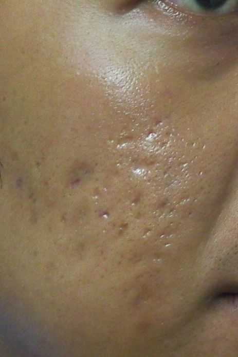 Natural Treatment Pimple Scars